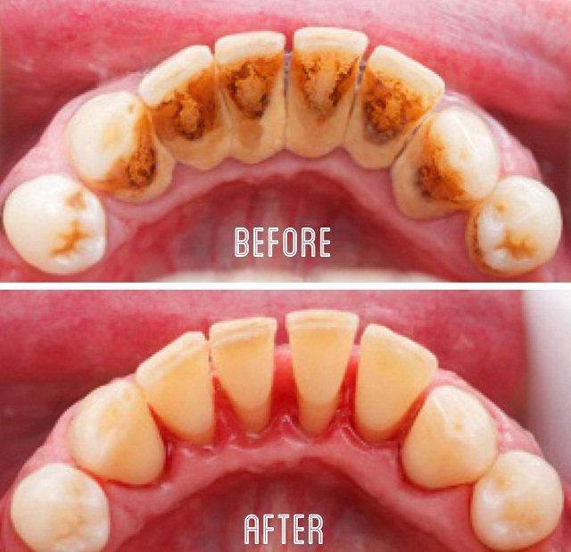 Bahaya Karang Gigi
